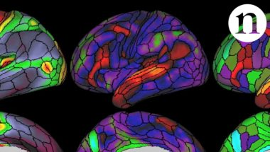 The ultimate brain map