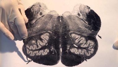 Neuroanatomy Video Lab - Brain Dissections: Brain Stem & Reflexes