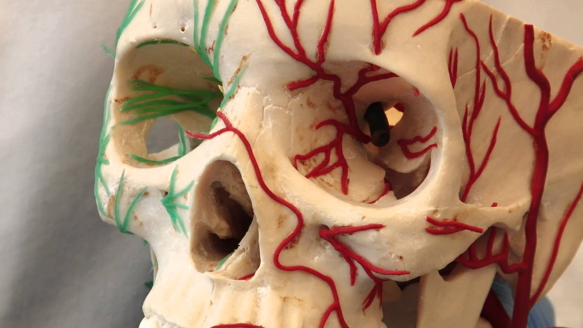 Neuroanatomy Video Lab - Brain Dissections: Control of the Pupil ...