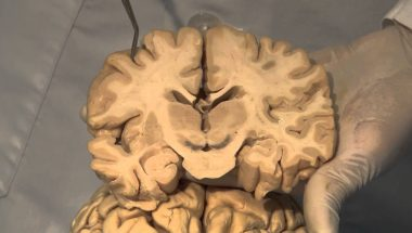 Neuroanatomy Video Lab - Brain Dissections: Cortical Localization
