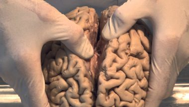 Neuroanatomy Video Lab - Brain Dissections: Introduction