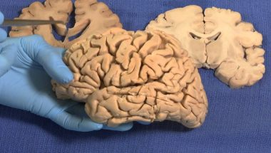 Neuroanatomy Video Lab - Brain Dissections: Limbic