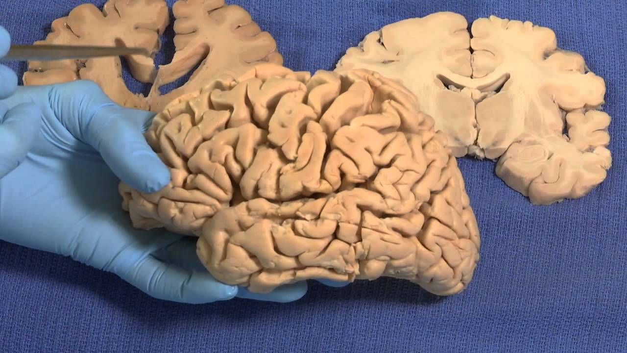 Neuroanatomy Video Lab Brain Dissections Limbic The Mind Voyager