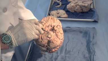 Neuroanatomy Video Lab - Brain Dissections: Orientation: The Planes of the Brain