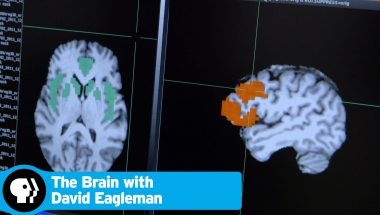 David Eagleman: The brain - Addiction