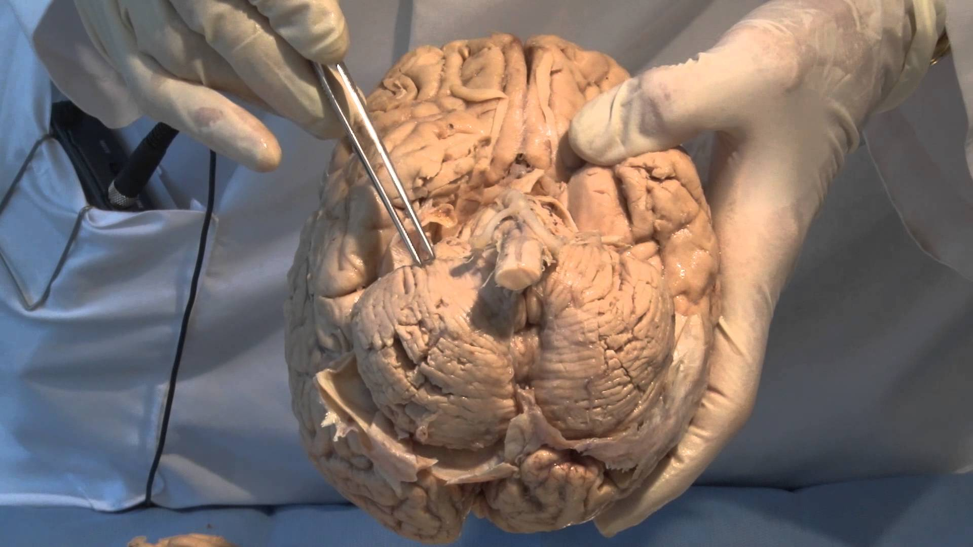 Neuroanatomy Video Lab - Brain Dissections: The Meninges - The Mind ...
