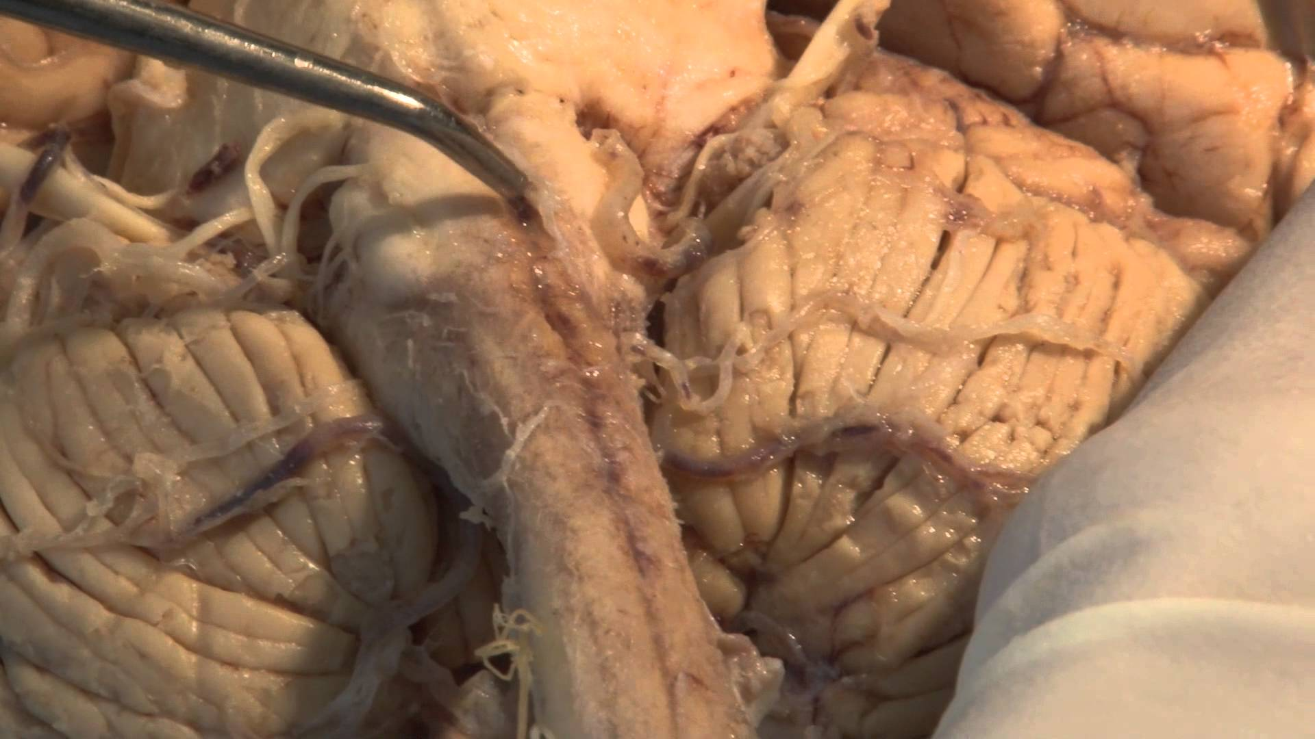 Neuroanatomy Video Lab Brain Dissections The Most Important