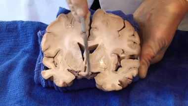 Neuroanatomy Video Lab - Brain Dissections: The Visual Pathway