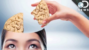 Can You Live With Only Half Of Your Brain?
