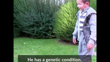 Boy with a genetic disease has had almost all his skin replaced