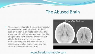 Stefan Molyneux: The Bomb in the Brain Part 1 - The True Roots of Human Violence