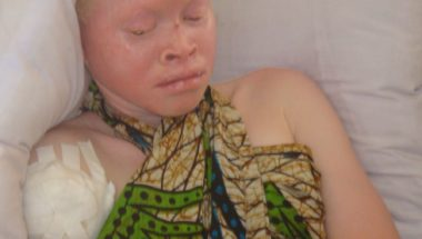 The Hunt For Albinos