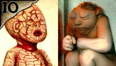 10 Horrible Birth Defects