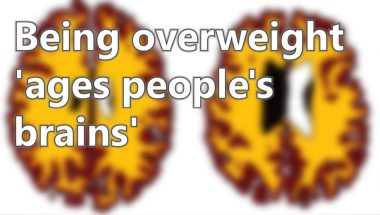 Being overweight ages people's brains