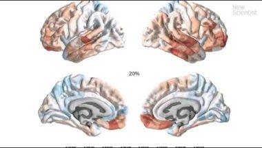 Teenage brain upgrades revealed