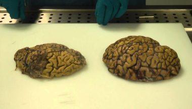 Alzheimer's brain dissection