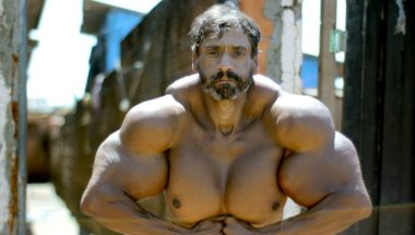 HOOKED ON THE LOOK: Bodybuilder's Supersized Fake Muscles Could Kill Him