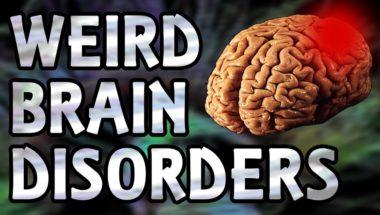 Top 5 Weird Brain Disorders