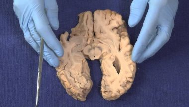 Neuroanatomy Video Lab - Brain Dissections: Basal Ganglia