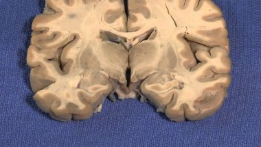 Neuroanatomy Video Lab - Brain Dissections: Hypothalamus