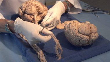 Neuroanatomy Video Lab - Brain Dissections: Three Critical Vertical Pathways