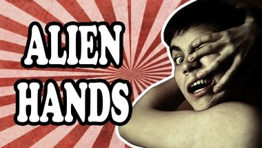 The Curious Case of Alien Hand Syndrome