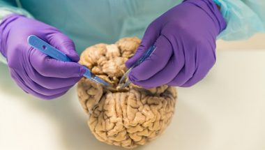 The Man Slicing Up Brains for Parkinson's Research