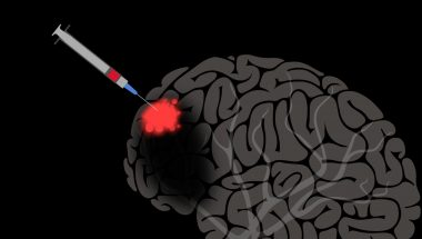 Jocelyne Bloch: The brain may be able to repair itself - with help